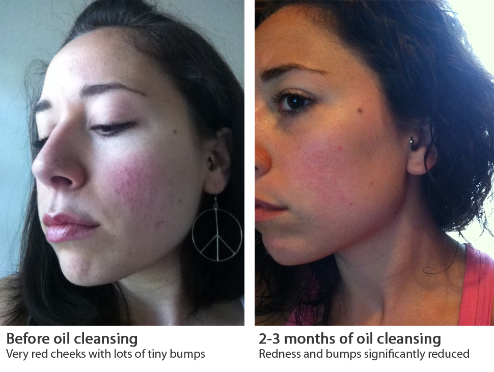 Bye Bye Rosacea Glowing Skin For The Bride To Be Primal